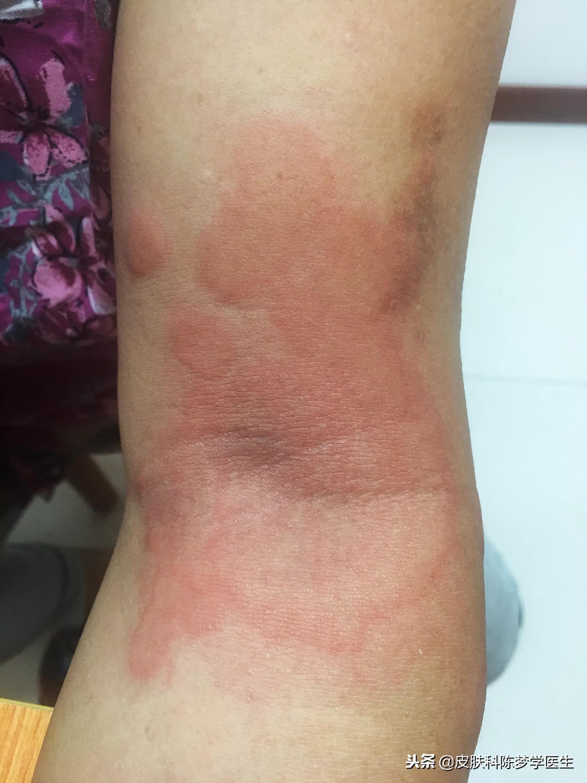 热型荨麻疹最常用的几首药方#陈梦学中医皮 - 第1张  | 网络大咖