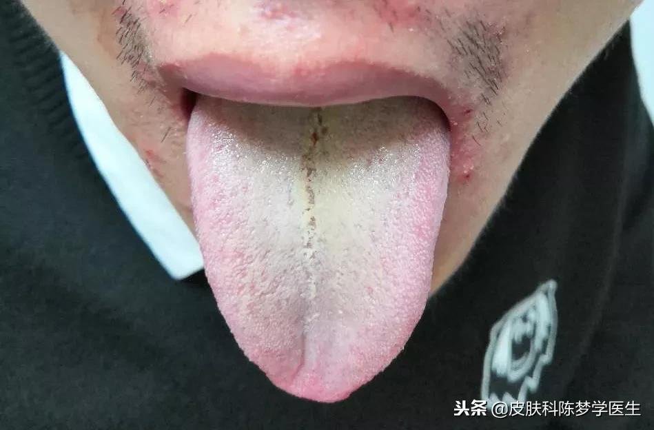 痘痘为什么会此消彼长?#陈梦学中医皮肤科 - 第1张  | 网络大咖