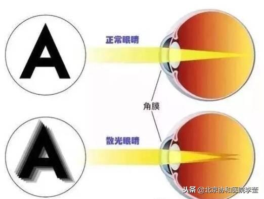 如果我们的角膜在某一角度的弧度较弯,而另 - 第1张  | 网络大咖