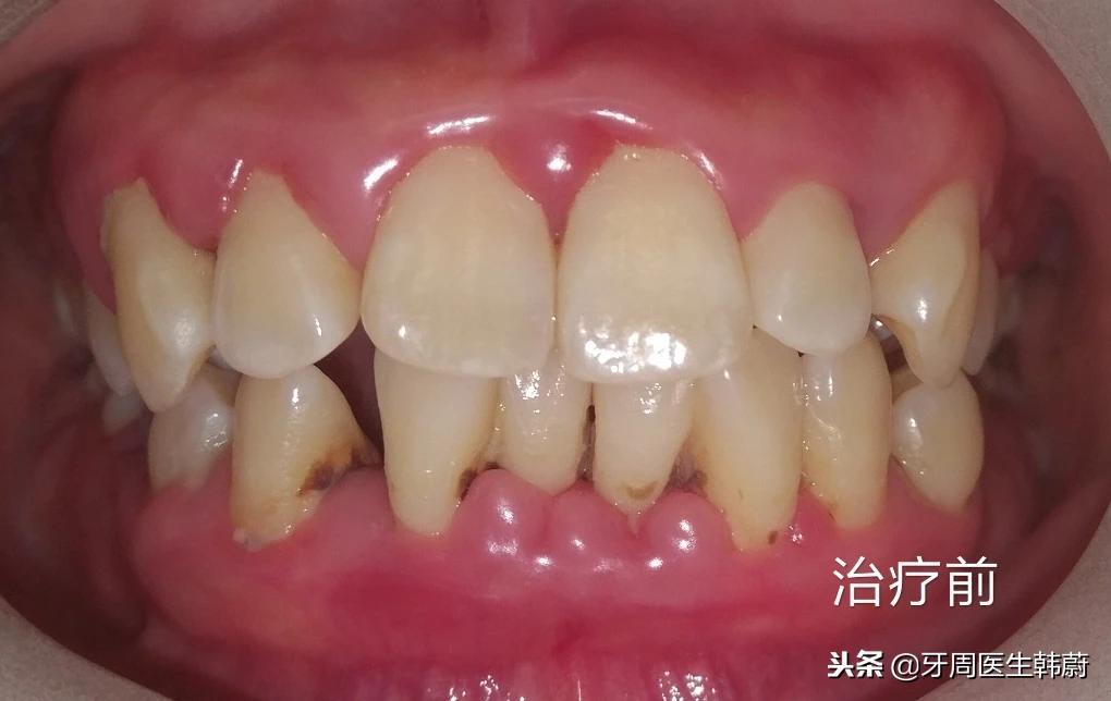 〔下午门诊27岁的患者〕她知道自己有牙周 - 第1张  | 网络大咖