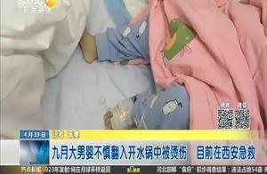 九月大男婴不慎翻入开水锅中被烫伤 目前在西安急救