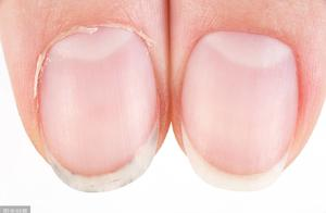 指甲上的月牙越大,说明身体越好?不懂的人,可能会吃亏