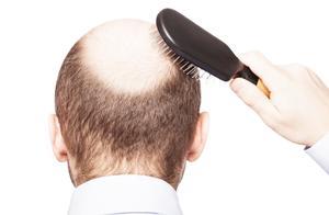 润锦说丨为什么脱发总是从头顶开始