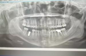 从业18年的牙医告诉你:中国的儿童齿科有多黑?