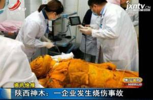 陕西神木:一企业发生烧伤事故
