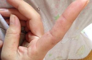 26岁男子查出汗疱疹,医生直言:两件事做得太多,还不知克制