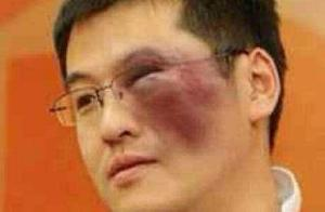 最强打脸王杨毅再放狂言,新疆这波人品败得太秀!