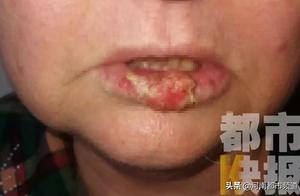 西安7旬老太嘴唇破裂,以为只是上火,医生一看脸都白了!是癌!