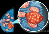怎么安慰一個因乳腺癌而割去乳的患者