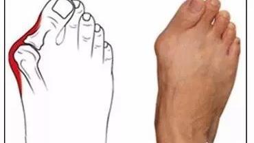 为什么说小心高跟鞋留下美丽后遗症?