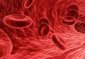 """血栓又称健康""""第一杀手""""!医生提醒:不想血管破裂,多吃这几物"""