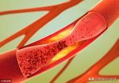 体检查出中度动脉硬化可以治好吗?
