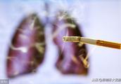 等体检查出肺癌就晚了,如何更早筛查