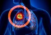 为什么现在查出有肺结节的人多起来?肺结节是不是肺癌