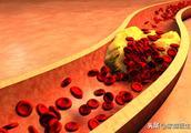 """怎么清理血管""""垃圾""""?先别吃药,这几件小事就能帮大忙"""