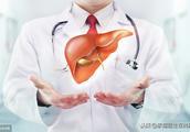 为什么肝癌越来越年轻化?主要是这4个元凶在作怪