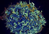 科学家带来艾滋病临床试验最新结果,能否将隐藏的HIV一扫而空?