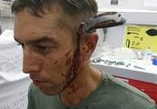 南非男子上班路上遇袭头部被插长刀,淡定骑车去医院就诊惊呆医生