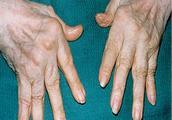 医生提醒:类风湿关节炎不及早预防治疗,后果不堪设想。