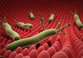 幽门螺杆菌根治后,复查需要做胃镜肠镜吗?来看看医生怎么说