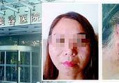 女子在济南旭美美容医院两次整形 人没年轻反成了大小脸