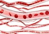 血管''不通''的人,睡觉时或许会出现三个表现,现在知道还不晚