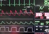 """听个笑话血压飙到260!男子莫名患高血压 竟是体内藏了一个""""炸弹"""""""