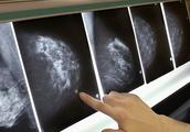 问答|查出乳腺癌又发现甲状腺癌,肿瘤也有男女偏好?