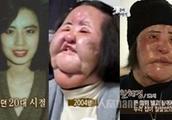 电风扇阿姨去世 生前整容照片曝光太骇人了!