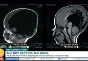 男孩出生大脑只有正常大小的2%  3岁时大脑长到80%,打破医生预言存活