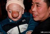 3小时收到募捐款20万,重庆幼儿治病得15万,剩下5万元该咋处理?