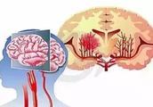 脑血管崩溃前的10个信号,千万别等半身不遂才看到!
